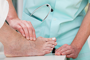 Bunions in Syracuse, NY and surrounding areas